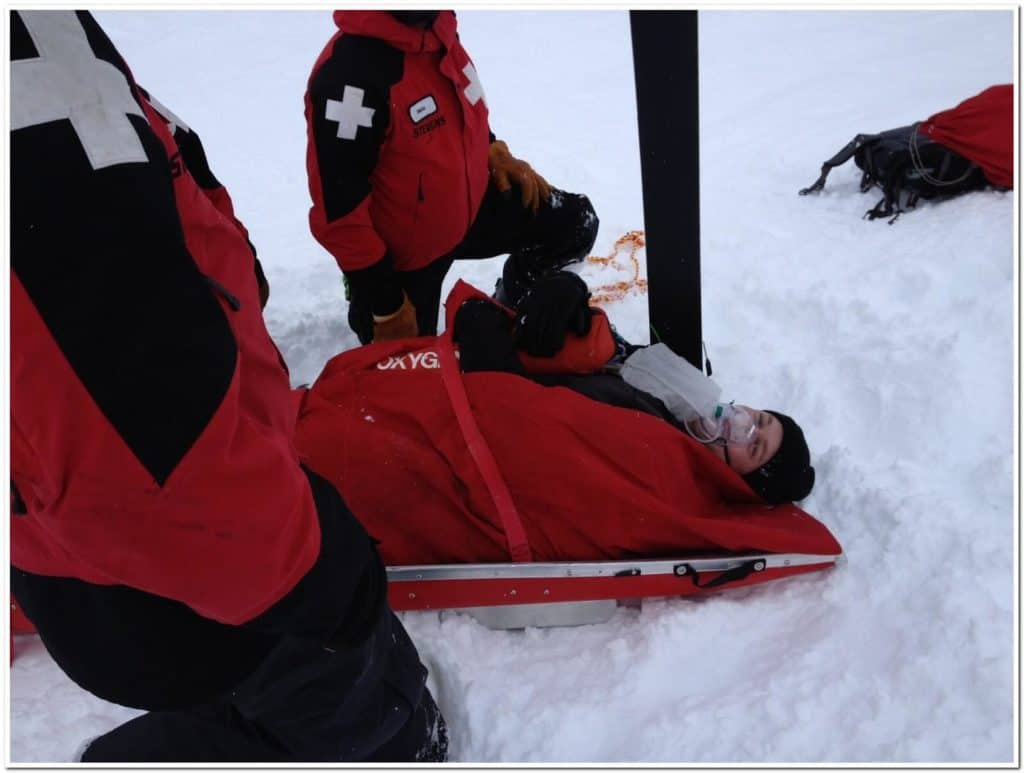 Skiing Accident Quad Tendon Ruptures Stevens Pass Ski Patrol 4