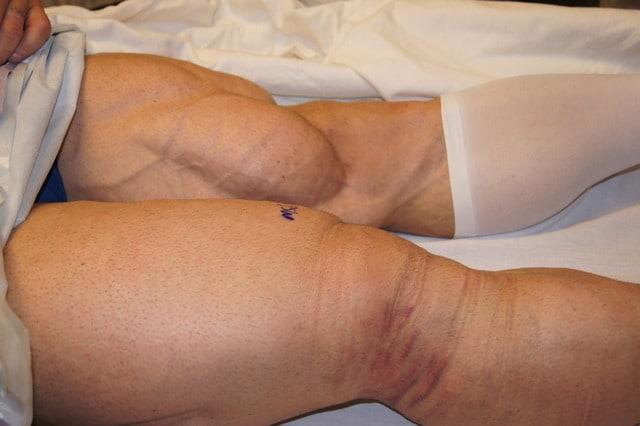 ifbb-pro-bodybuilder-branch-warren-leg